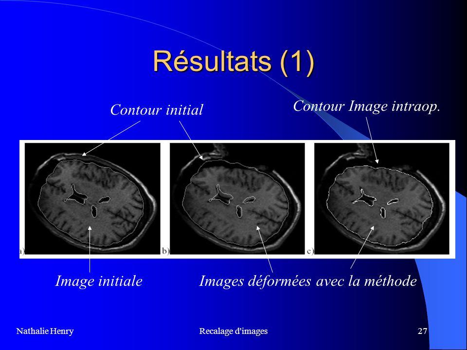 Recalage d'images27 Résultats (1) Nathalie Henry Contour initial Contour Image intraop. Image initialeImages déformées avec la méthode