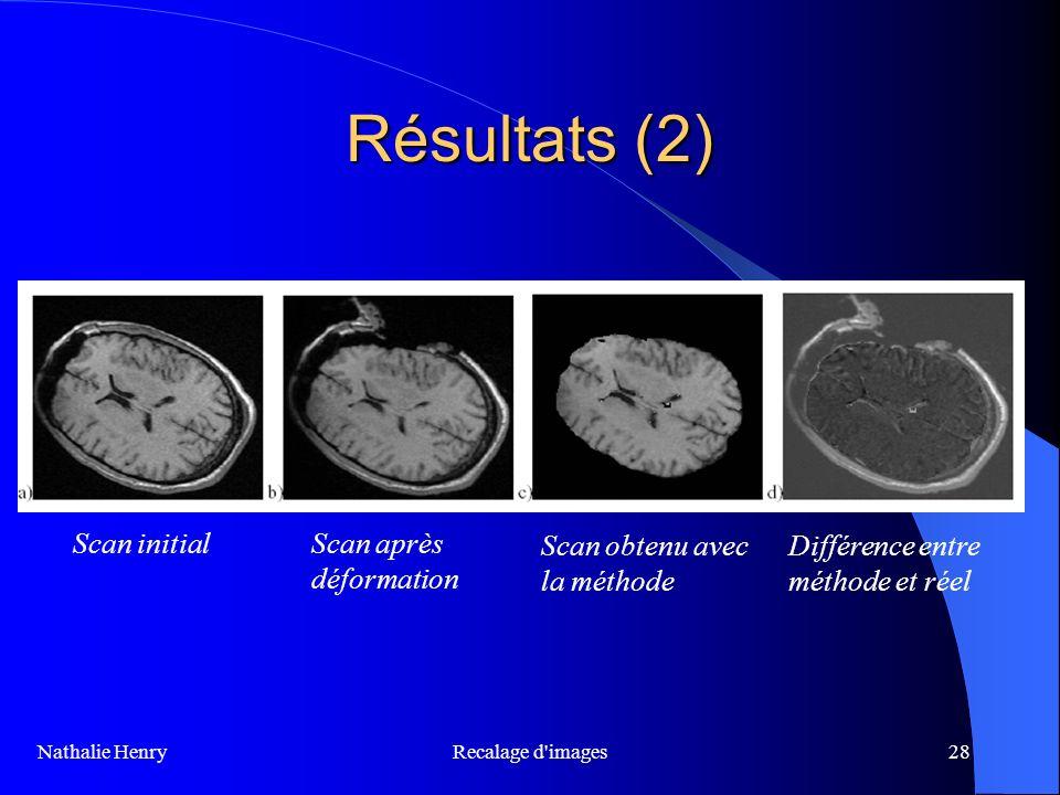 Recalage d'images28 Résultats (2) Nathalie Henry Scan initialScan après déformation Scan obtenu avec la méthode Différence entre méthode et réel