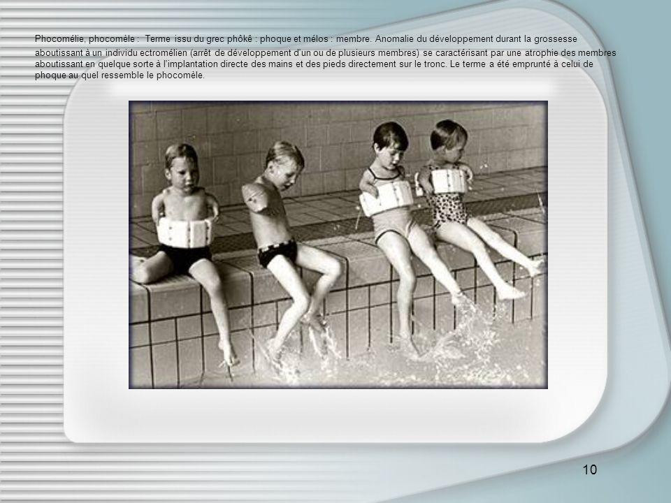 10 Phocomélie, phocomèle : Terme issu du grec phôkê : phoque et mélos : membre. Anomalie du développement durant la grossesse aboutissant à un individ