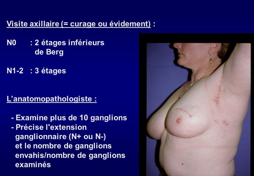 TRAITEMENT 1 - Chirurgie a - Moyens Traitement conservateur = Mastectomie Partielle et Curage Axillaire (MPCA) enlève T en passant au large ; berges s