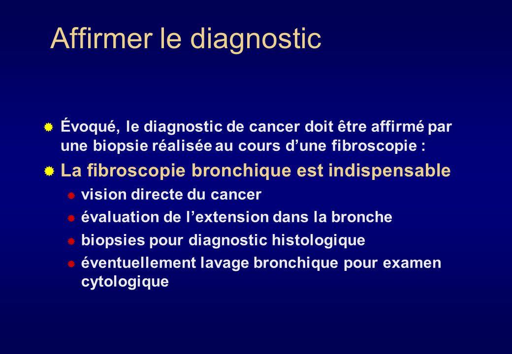 Marqueurs tumoraux Aucun marqueur spécifique de cancer bronchique Marqueurs évalués : ACE Antigène SCC NSE CYFRA 21 En pratique: AUCUN INTERET