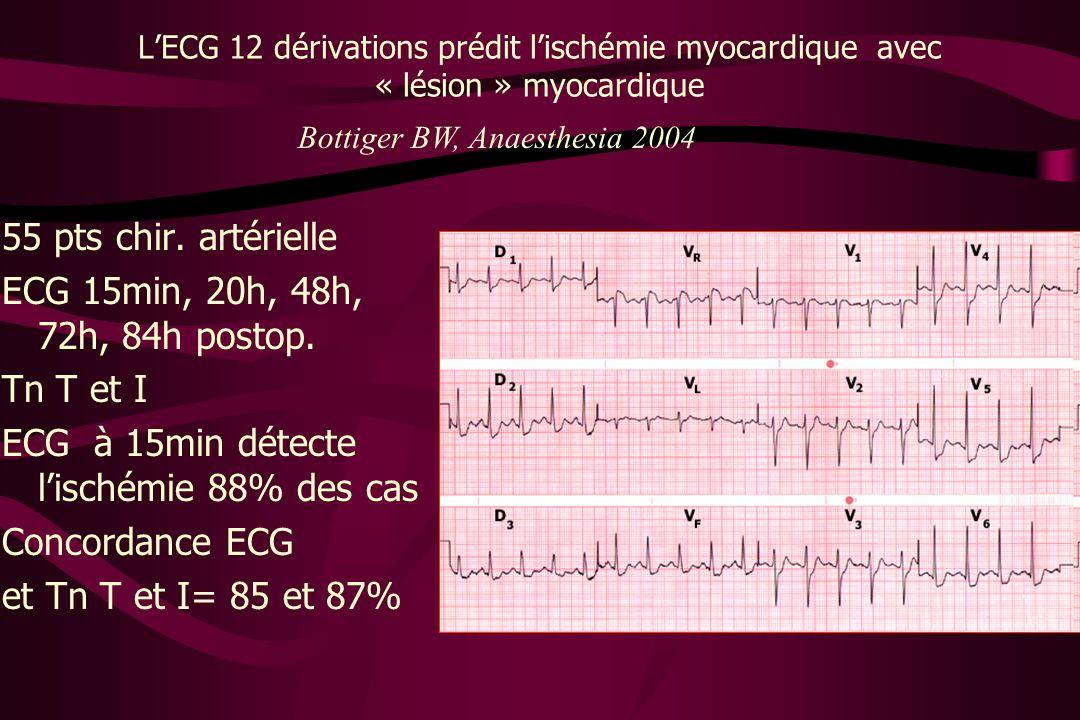 LECG 12 dérivations prédit lischémie myocardique avec « lésion » myocardique 55 pts chir. artérielle ECG 15min, 20h, 48h, 72h, 84h postop. Tn T et I E
