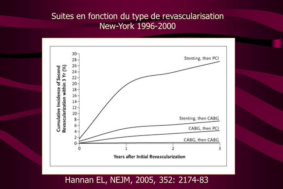 Suites en fonction du type de revascularisation New-York 1996-2000 Hannan EL, NEJM, 2005, 352: 2174-83
