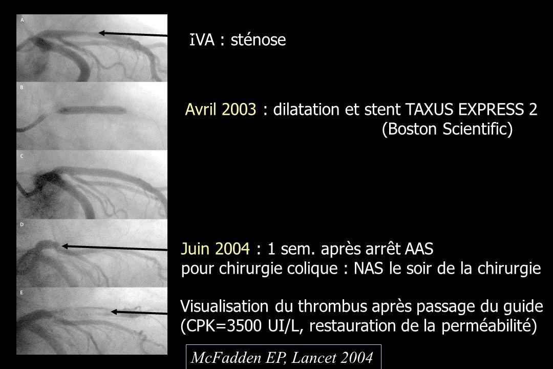 IVA : sténose Avril 2003 : dilatation et stent TAXUS EXPRESS 2 (Boston Scientific) Juin 2004 : 1 sem. après arrêt AAS pour chirurgie colique : NAS le