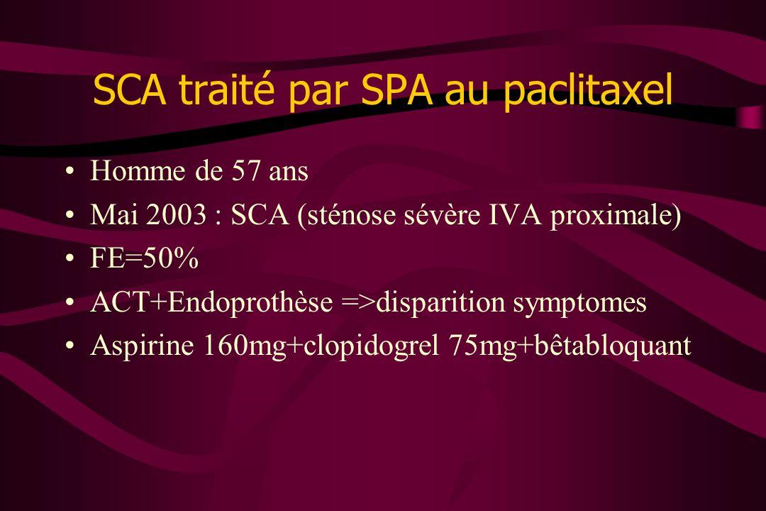 SCA traité par SPA au paclitaxel Homme de 57 ans Mai 2003 : SCA (sténose sévère IVA proximale) FE=50% ACT+Endoprothèse =>disparition symptomes Aspirin