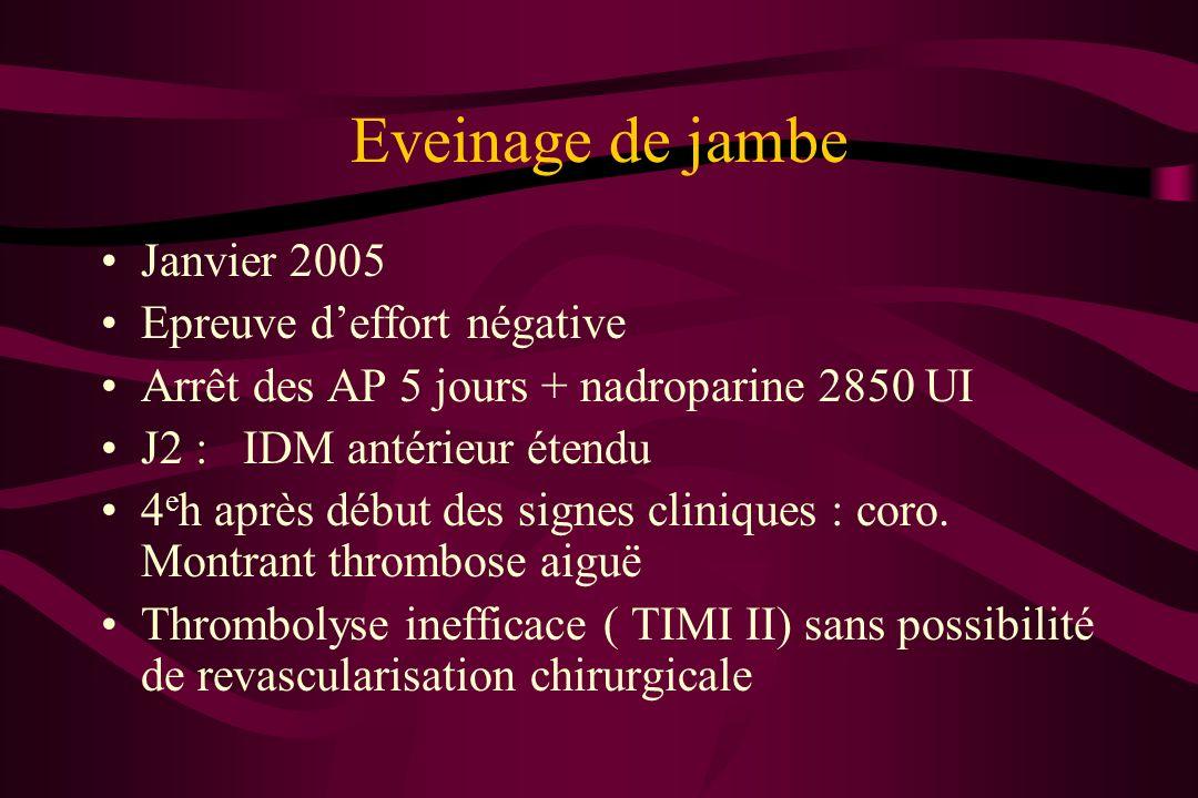 Eveinage de jambe Janvier 2005 Epreuve deffort négative Arrêt des AP 5 jours + nadroparine 2850 UI J2 : IDM antérieur étendu 4 e h après début des sig
