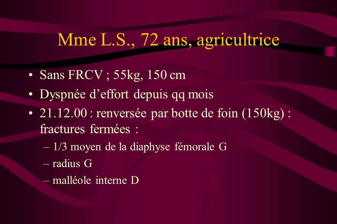 Mme L.S., 72 ans, agricultrice Sans FRCV ; 55kg, 150 cm Dyspnée deffort depuis qq mois 21.12.00 : renversée par botte de foin (150kg) : fractures ferm