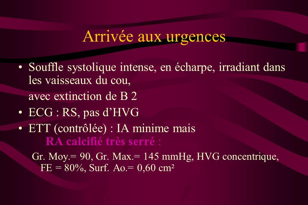 Arrivée aux urgences Souffle systolique intense, en écharpe, irradiant dans les vaisseaux du cou, avec extinction de B 2 ECG : RS, pas dHVG ETT (contr