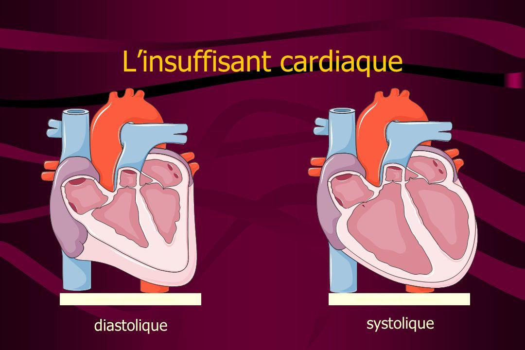 Linsuffisant cardiaque Insuffisance cardiaque diastolique Insuffisance cardiaque systolique diastolique systolique