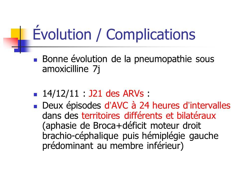 Évolution / Complications Bonne évolution de la pneumopathie sous amoxicilline 7j 14/12/11 : J21 des ARVs : Deux épisodes dAVC à 24 heures dintervalle