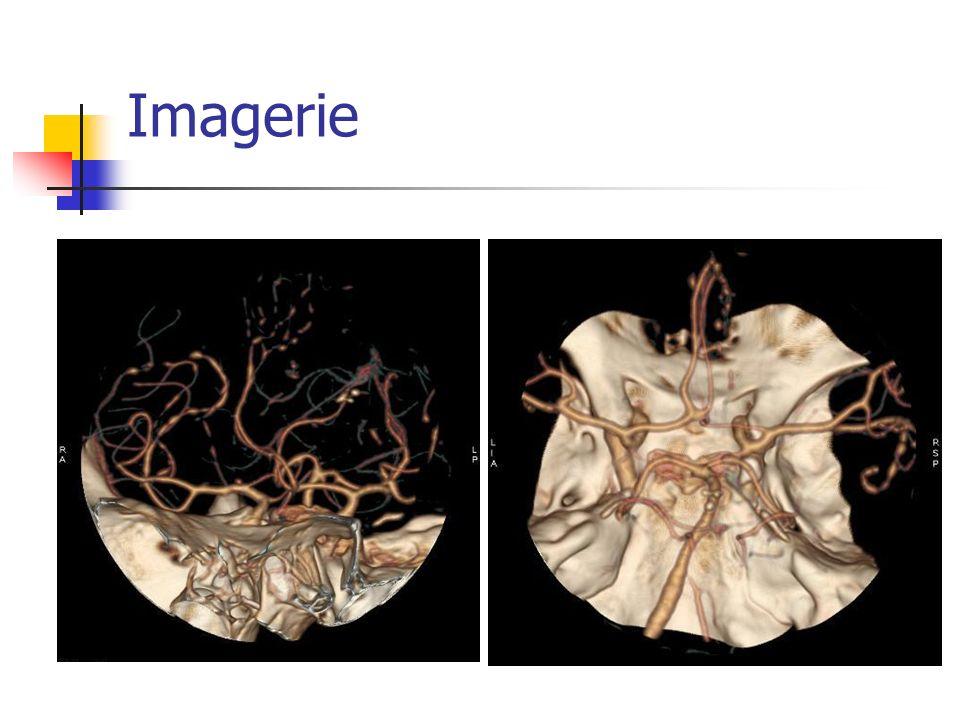 Quelques généralités Raisonnement par analogie (Guillevin) Des entités à part Angéite Primitive cérébrale Rare Céphalée, troubles cognitifs Granulomateuses (attention tuberculose) Mortalité >50%
