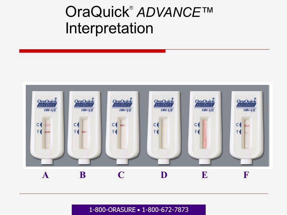 OraQuick ® ADVANCE Interpretation ABCDEF 1-800-ORASURE 1-800-672-7873