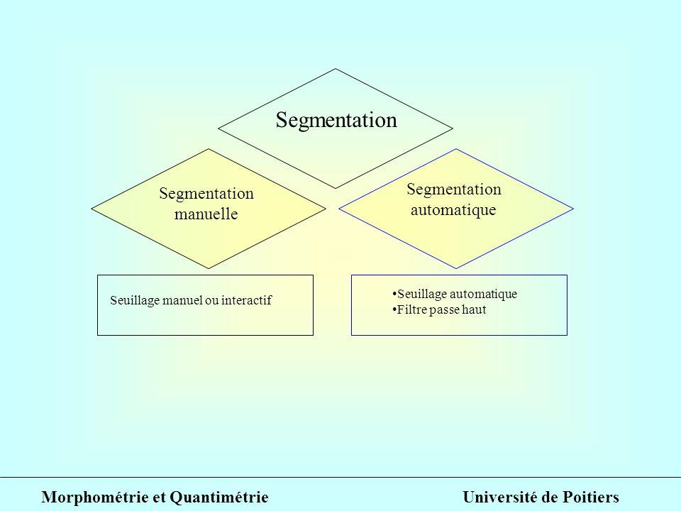 Segmentation manuelle Segmentation automatique Seuillage manuel ou interactif Seuillage automatique Filtre passe haut Morphométrie et Quantimétrie Uni