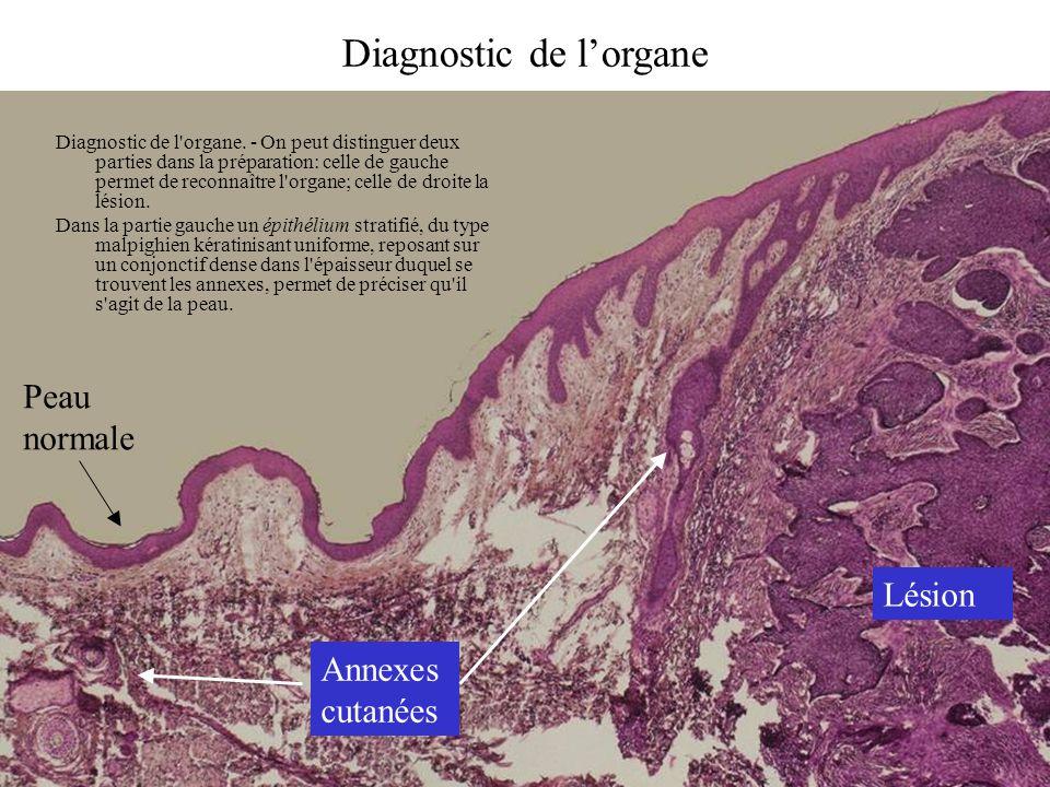 Diagnostic de l'organe. - On peut distinguer deux parties dans la préparation: celle de gauche permet de reconnaître l'organe; celle de droite la lési