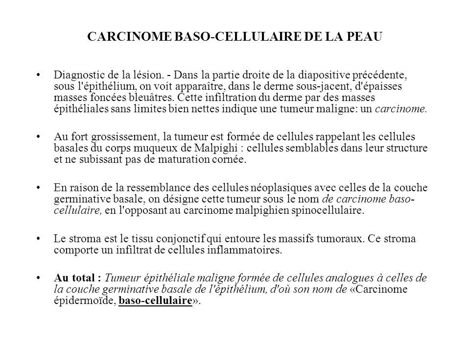 CARCINOME BASO-CELLULAIRE DE LA PEAU Diagnostic de la lésion. - Dans la partie droite de la diapositive précédente, sous l'épithélium, on voit apparaî