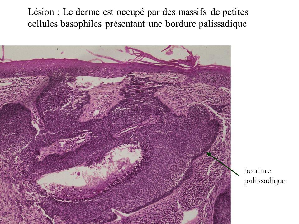 Lésion : Le derme est occupé par des massifs de petites cellules basophiles présentant une bordure palissadique bordure palissadique
