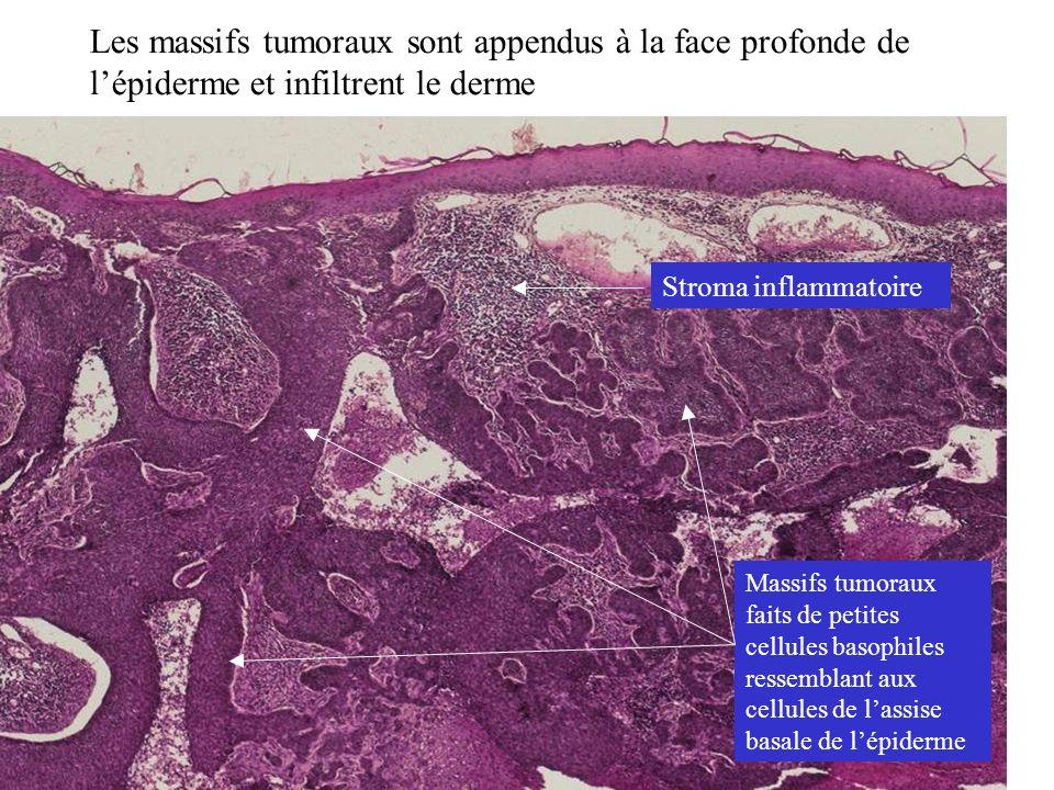Les massifs tumoraux sont appendus à la face profonde de lépiderme et infiltrent le derme Stroma inflammatoire Massifs tumoraux faits de petites cellu