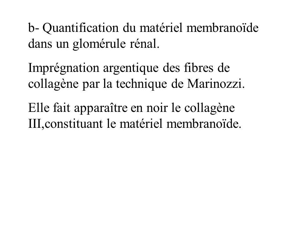 b- Quantification du matériel membranoïde dans un glomérule rénal. Imprégnation argentique des fibres de collagène par la technique de Marinozzi. Elle