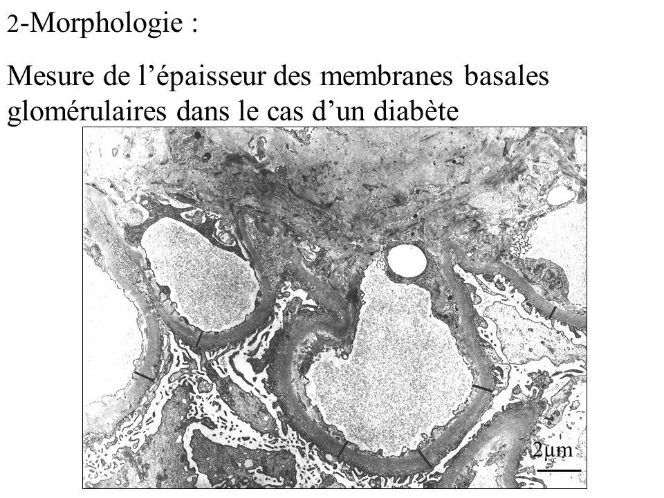 2 -Morphologie : Mesure de lépaisseur des membranes basales glomérulaires dans le cas dun diabète 2µm