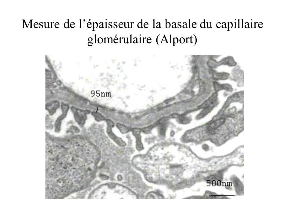 Mesure de lépaisseur de la basale du capillaire glomérulaire (Alport)