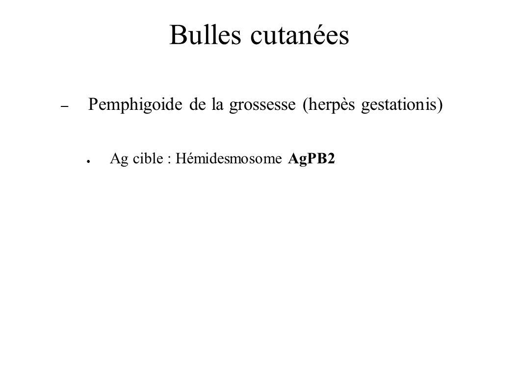 Bulles cutanées – Pemphigoide de la grossesse (herpès gestationis) Ag cible : Hémidesmosome AgPB2