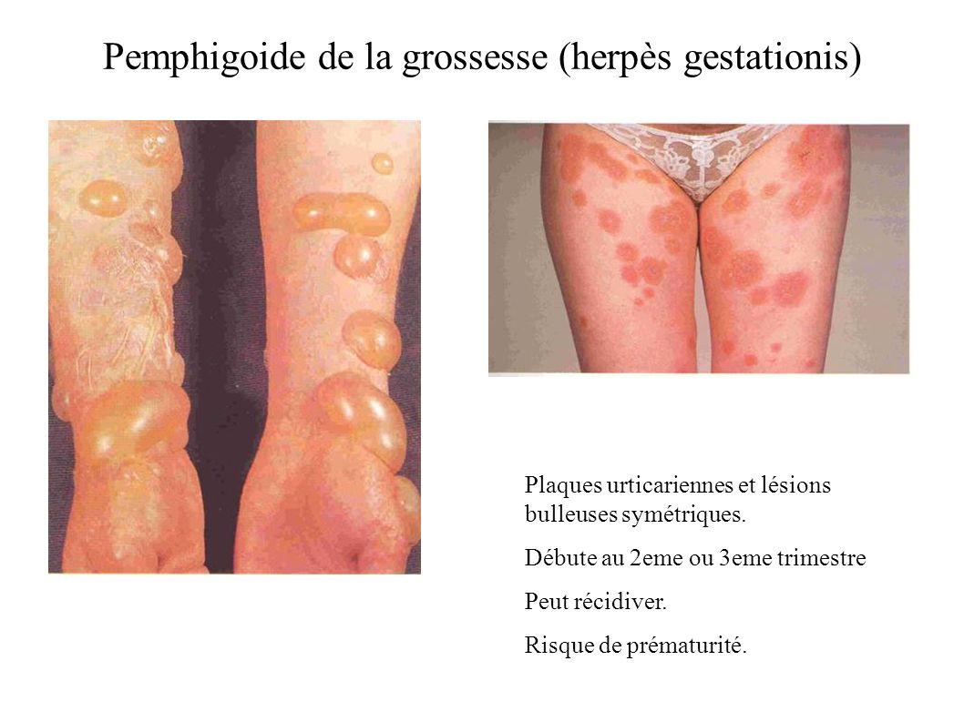 Pemphigoide de la grossesse (herpès gestationis) Plaques urticariennes et lésions bulleuses symétriques. Débute au 2eme ou 3eme trimestre Peut récidiv