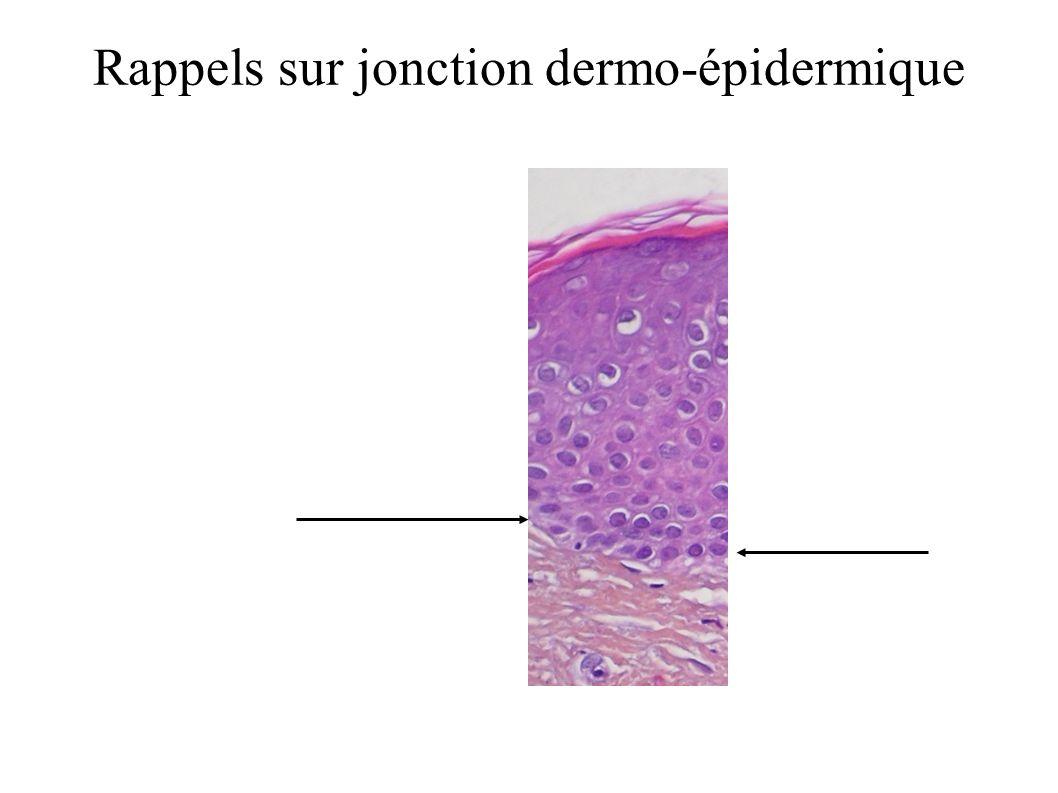 Rappels sur jonction dermo-épidermique