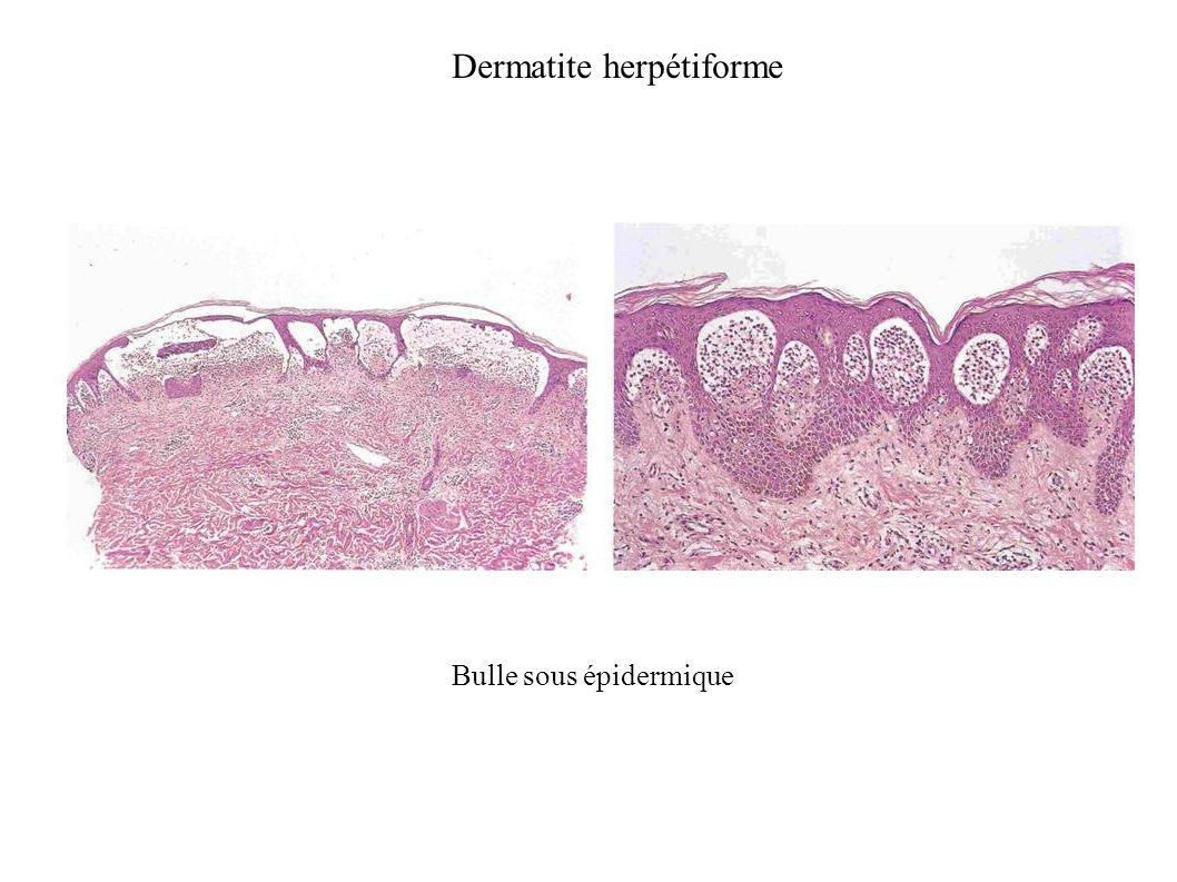Dermatite herpétiforme Bulle sous épidermique
