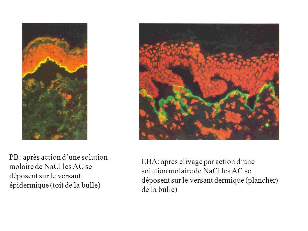 PB: après action dune solution molaire de NaCl les AC se déposent sur le versant épidermique (toit de la bulle) EBA: après clivage par action dune sol