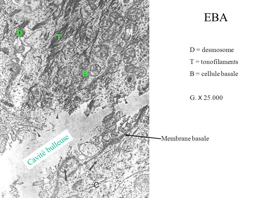 D = desmosome T = tonofilaments B = cellule basale G. X 25.000 Cavité bulleuse Membrane basale EBA