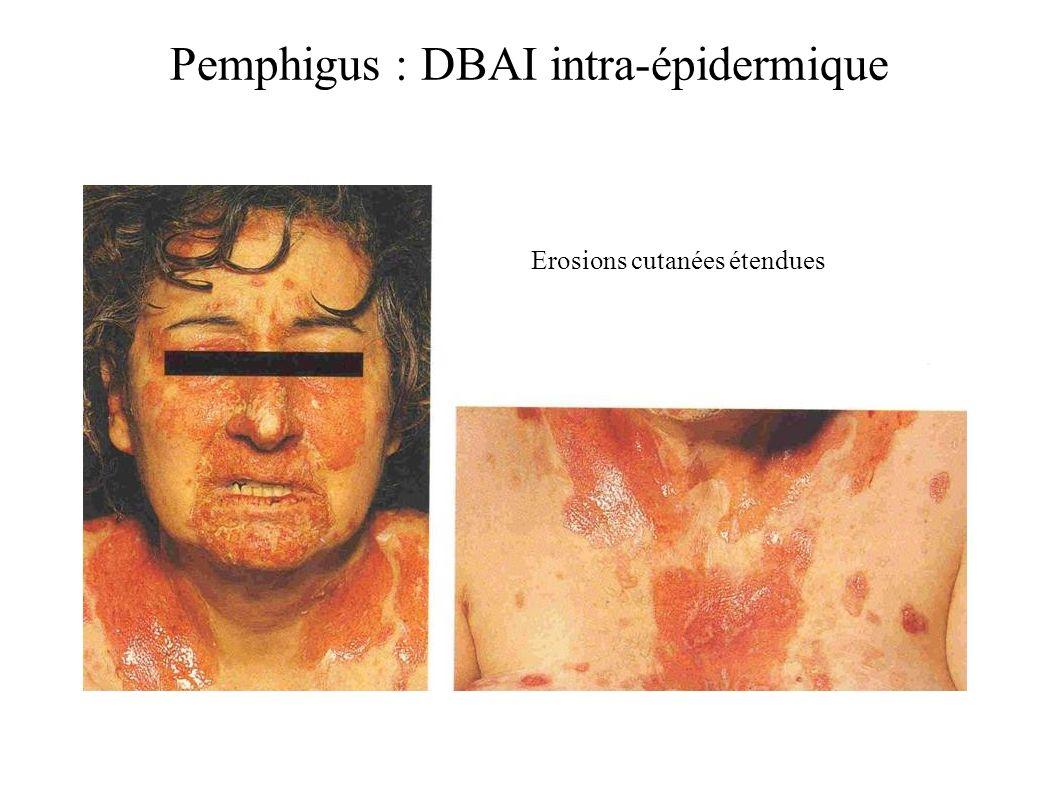 Pemphigus : DBAI intra-épidermique Erosions cutanées étendues