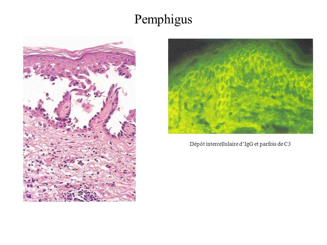 Dépôt intercellulaire dIgG et parfois de C3