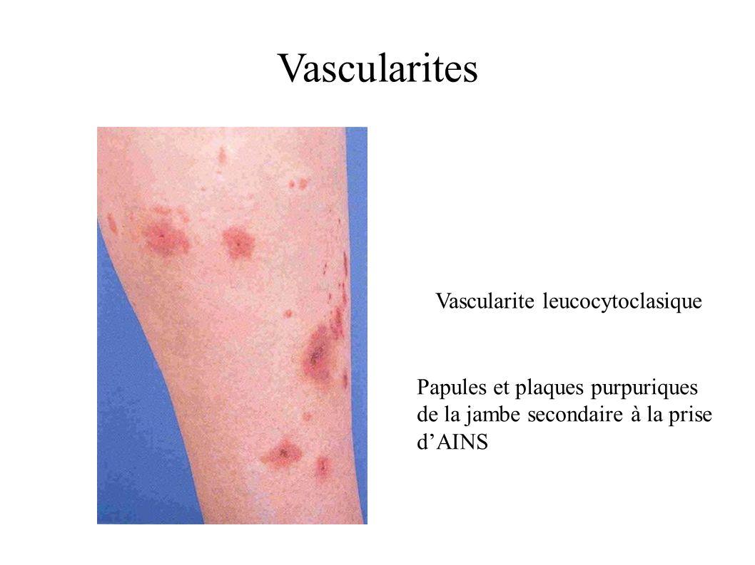 Vascularite leucocytoclasique Papules et plaques purpuriques de la jambe secondaire à la prise dAINS Vascularites