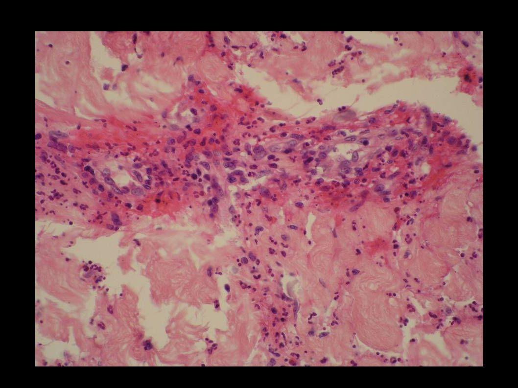 Purpura rhumatoïde Dépôts vasculaires dIgA et de C3
