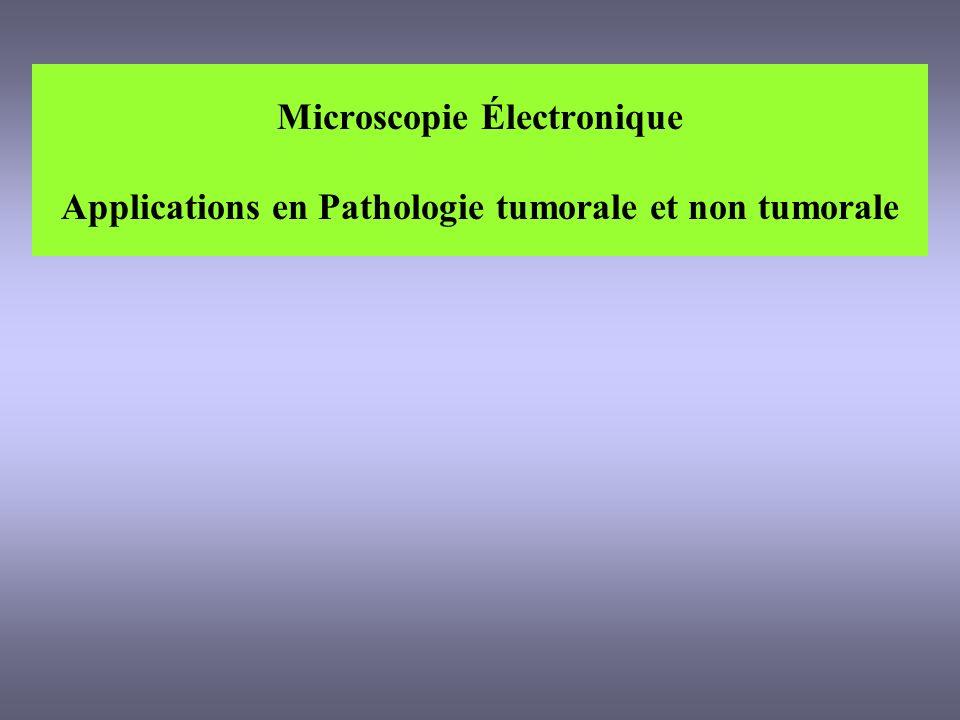 Microscopie Électronique Applications en Pathologie tumorale et non tumorale