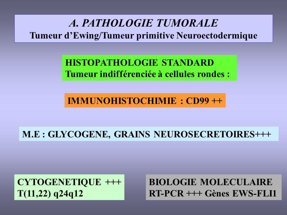 A. PATHOLOGIE TUMORALE Tumeur dEwing/Tumeur primitive Neuroectodermique HISTOPATHOLOGIE STANDARD Tumeur indifférenciée à cellules rondes : IMMUNOHISTO