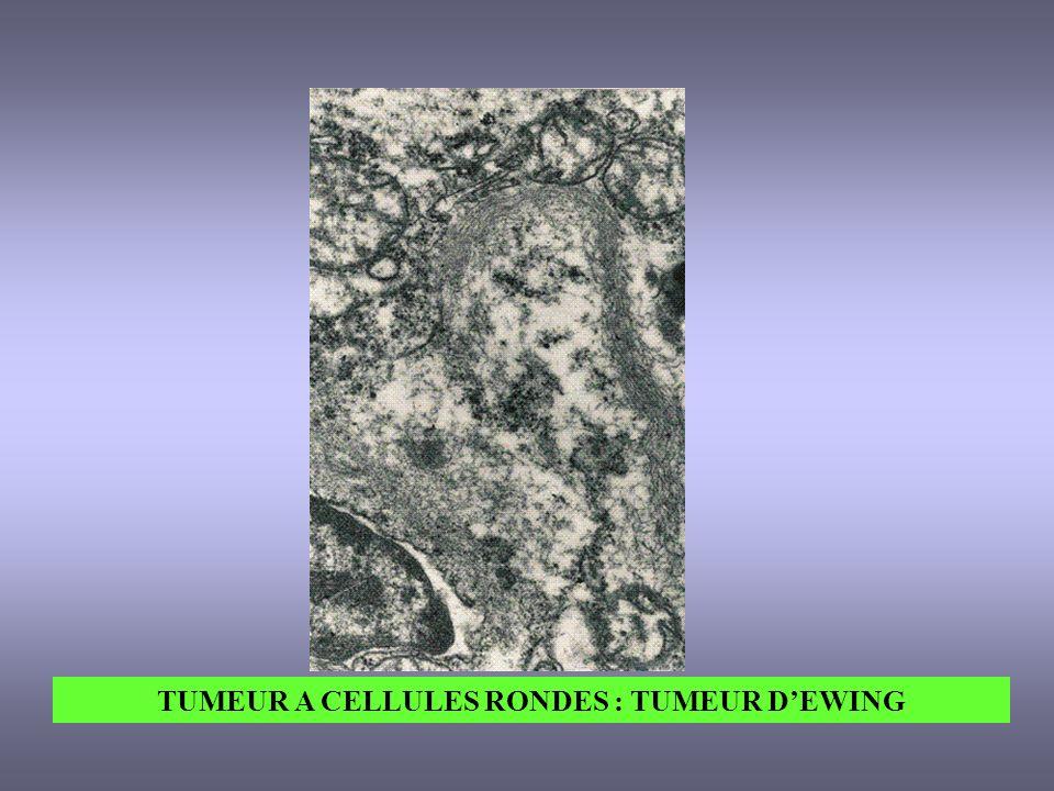 TUMEUR A CELLULES RONDES : TUMEUR DEWING