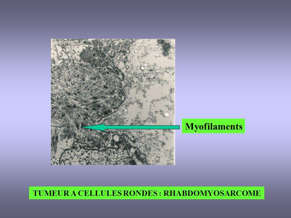 TUMEUR A CELLULES RONDES : RHABDOMYOSARCOME Myofilaments