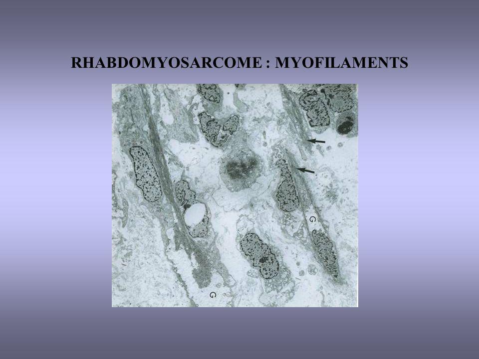 RHABDOMYOSARCOME : MYOFILAMENTS