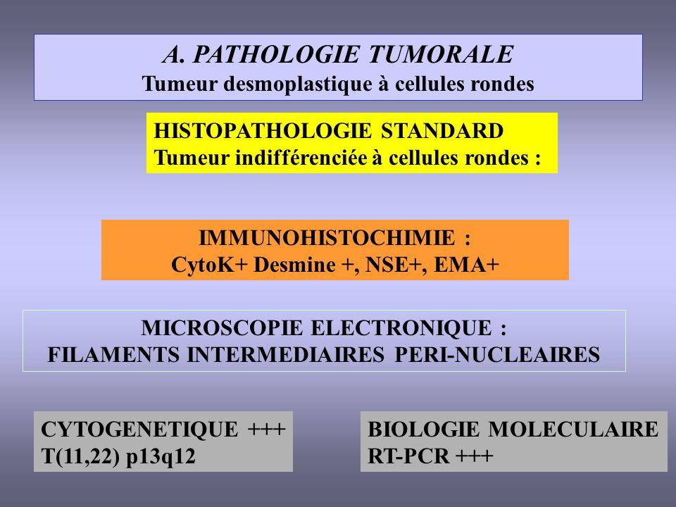 A. PATHOLOGIE TUMORALE Tumeur desmoplastique à cellules rondes HISTOPATHOLOGIE STANDARD Tumeur indifférenciée à cellules rondes : IMMUNOHISTOCHIMIE :