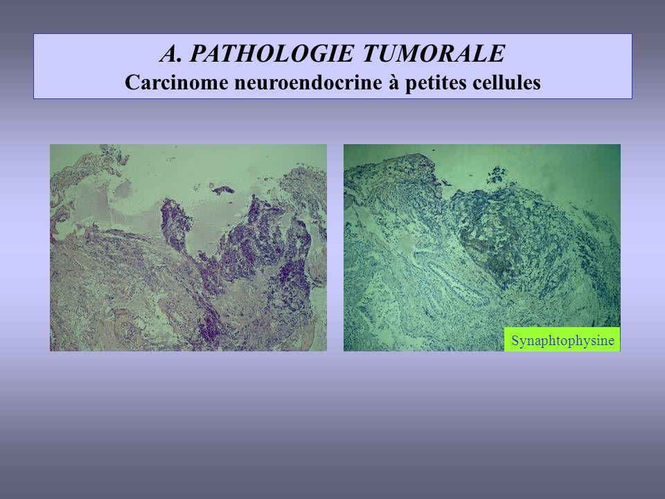 A. PATHOLOGIE TUMORALE Carcinome neuroendocrine à petites cellules Synaphtophysine