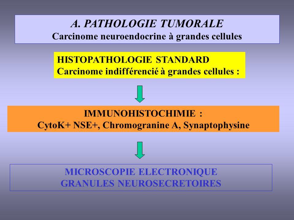 A. PATHOLOGIE TUMORALE Carcinome neuroendocrine à grandes cellules HISTOPATHOLOGIE STANDARD Carcinome indifférencié à grandes cellules : IMMUNOHISTOCH
