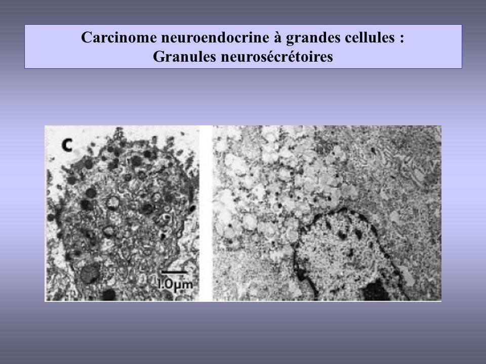 Carcinome neuroendocrine à grandes cellules : Granules neurosécrétoires