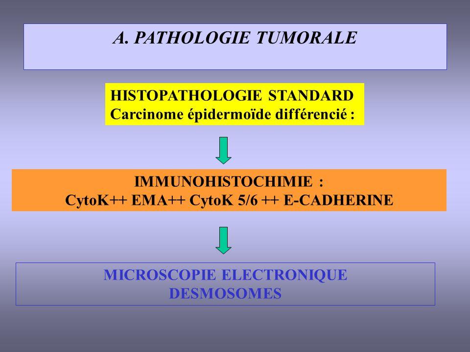 A. PATHOLOGIE TUMORALE HISTOPATHOLOGIE STANDARD Carcinome épidermoïde différencié : IMMUNOHISTOCHIMIE : CytoK++ EMA++ CytoK 5/6 ++ E-CADHERINE MICROSC