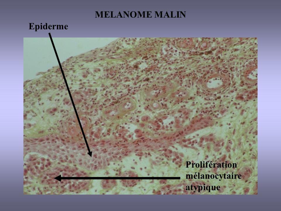 MELANOME MALIN Epiderme Prolifération mélanocytaire atypique