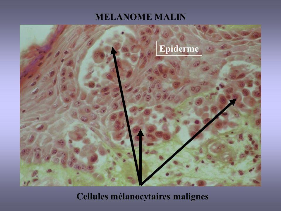 MELANOME MALIN Cellules mélanocytaires malignes Epiderme