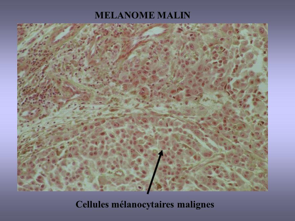 MELANOME MALIN Cellules mélanocytaires malignes