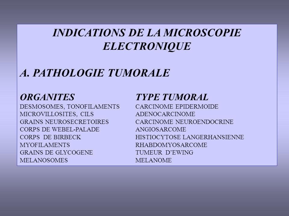 INDICATIONS DE LA MICROSCOPIE ELECTRONIQUE A. PATHOLOGIE TUMORALE ORGANITES TYPE TUMORAL DESMOSOMES, TONOFILAMENTSCARCINOME EPIDERMOIDE MICROVILLOSITE