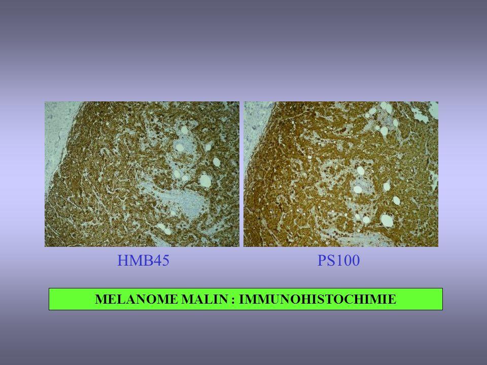 MELANOME MALIN : IMMUNOHISTOCHIMIE HMB45PS100