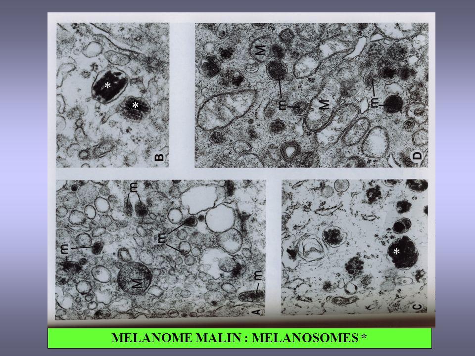 MELANOME MALIN : MELANOSOMES * ** * * * *